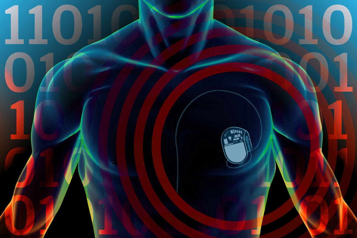 Network World: IoT Hacks [slide-07] > Heart Trouble > Surgically implatable IoT