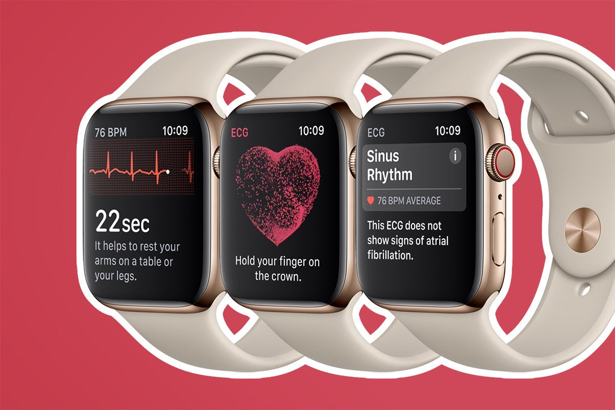 Apple Watch - Series 4&gt; Athletics / Health / Fitness&gt; ECG / Heart Rate / Sinus Rhythm &quot;width =&quot; 700 &quot;height =&quot; 467 &quot;data-imageid =&quot; 100772072 &quot;/&gt; <small class=