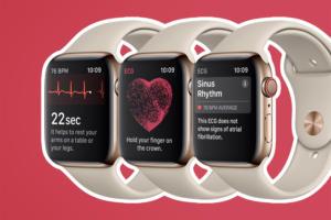 Apple Watch - Series 4 > Athletics / health / fitness > ECG / heartrate / sinus rhythm