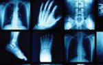 The New Radiology Assistant: Artificial Intelligence
