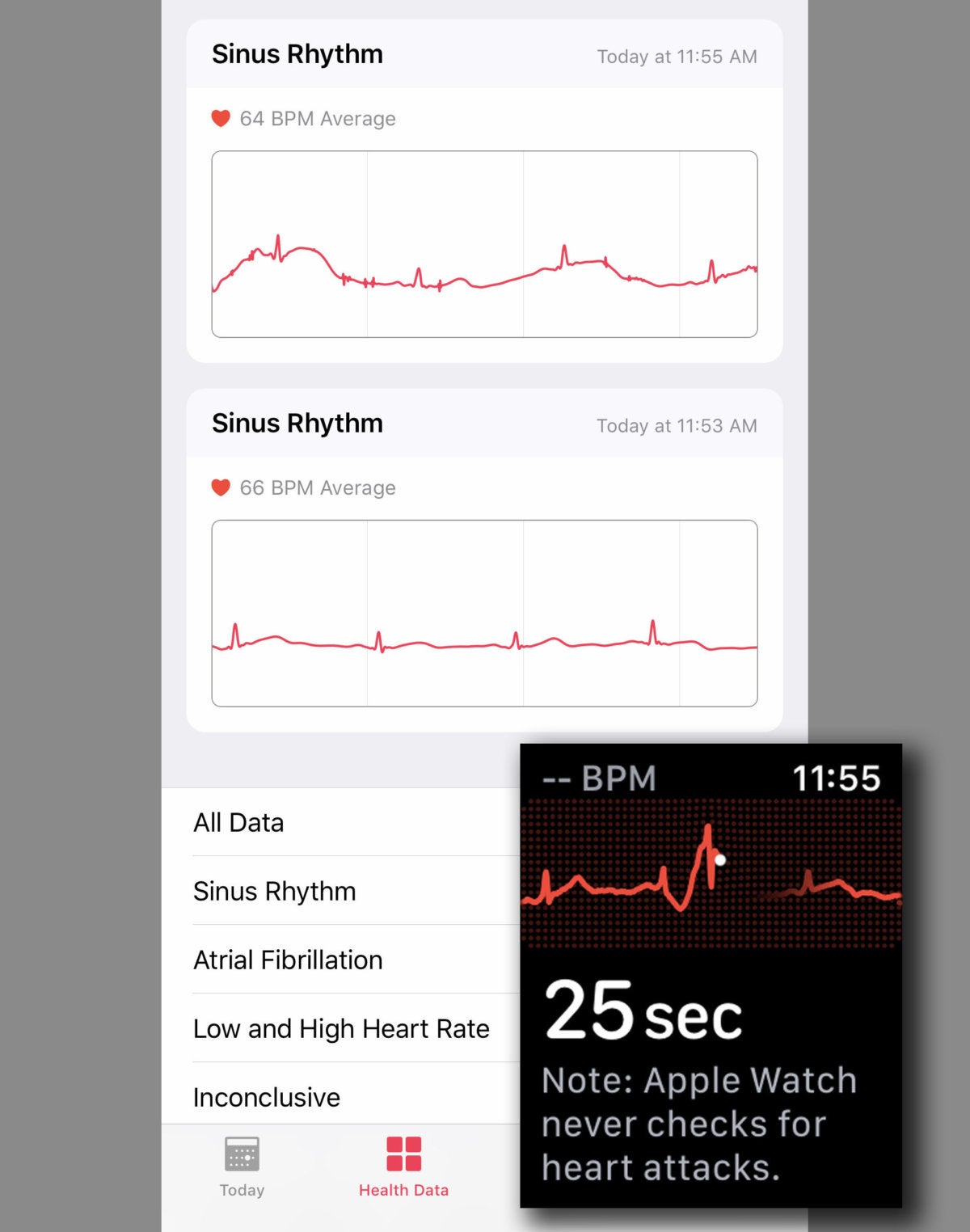 apple watch ecg complete