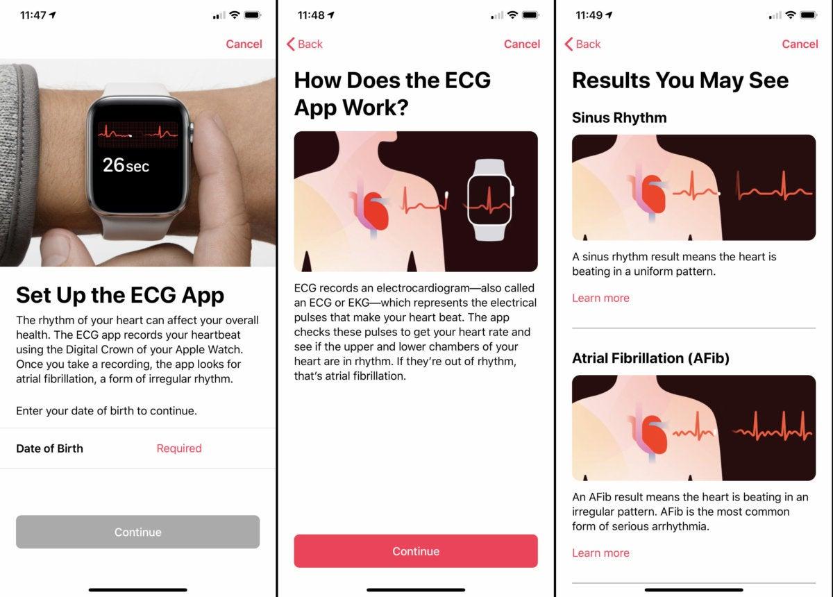 настройка ЭКГ по Apple Watch