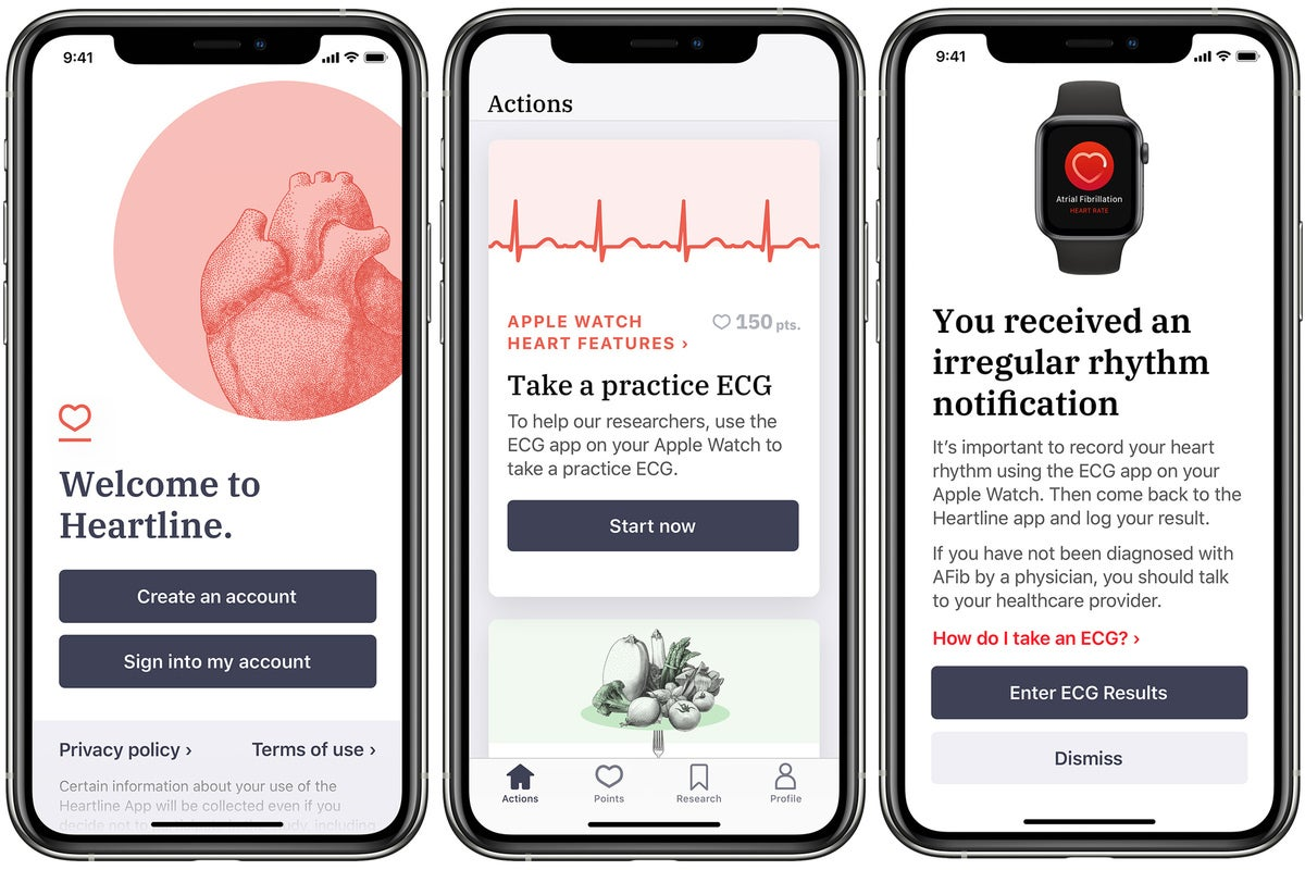 New Apple Watch study aims to add stroke detection to the list of life-saving features