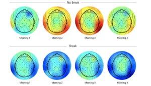 brain scan break vs no break crop Microsoft